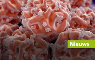 ZNA realiseert 1000ste stamceltransplantatie