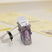 ZNA Anatomo-pathologie: weefsel onder microscoop