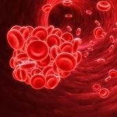 ZNA Hematologie