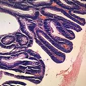 Digitaal beeld weefselstaal ZNA Anatomo-Pathologie